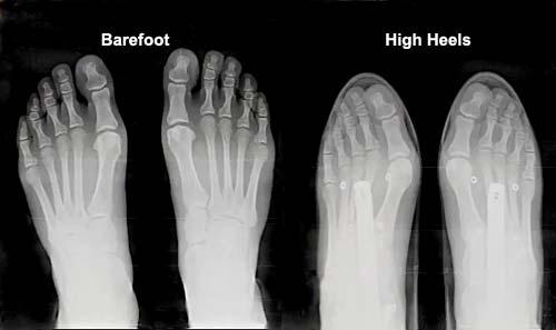 High Metatarsal Bones Shoes