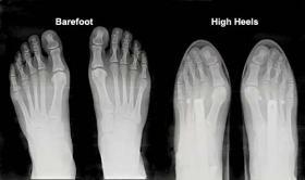 Toe Squash in high heels