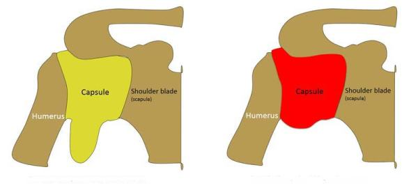 Frozen Shoulder Capsule
