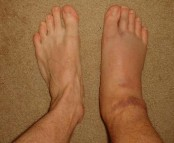 swollen-ankle