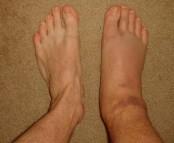 swollen-ankle